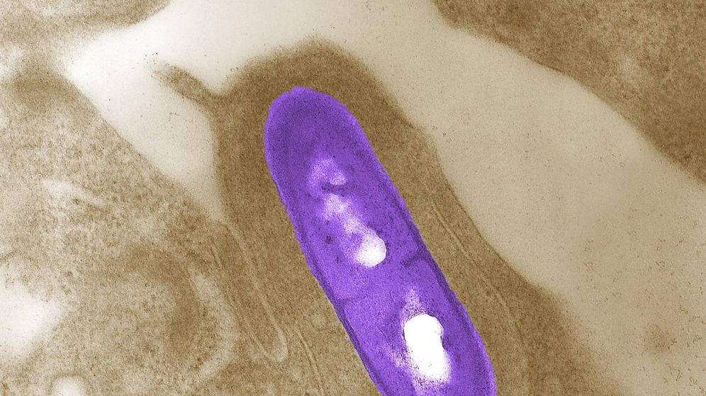 Foto: Imagen microscópica de una bacteria Listeria monocytogenes. (Reuters)