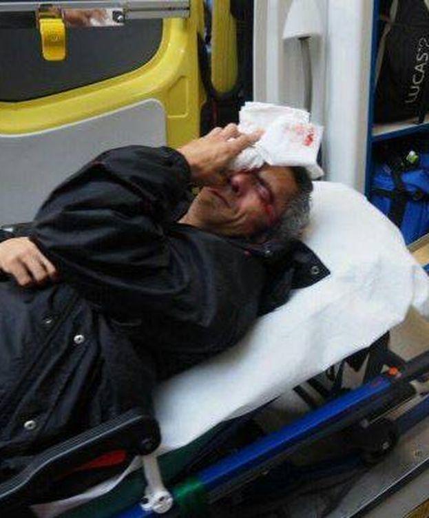 Foto: Un herido tras recibir el impacto de una pelota de goma en el ojo