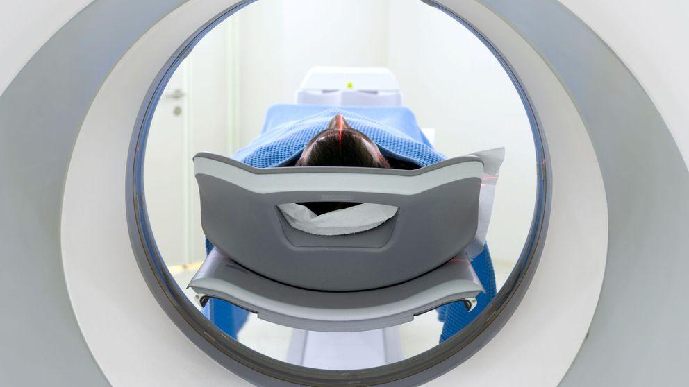 El peligro tras el TAC: casi la mitad de los escáneres son innecesarios