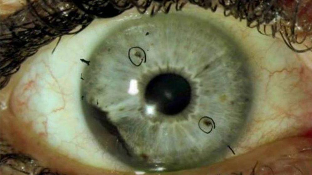 Foto: Melanoma ocular. (Universidad de Auburn)