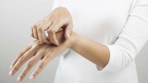 Siete mitos y falsas creencias sobre la psoriasis