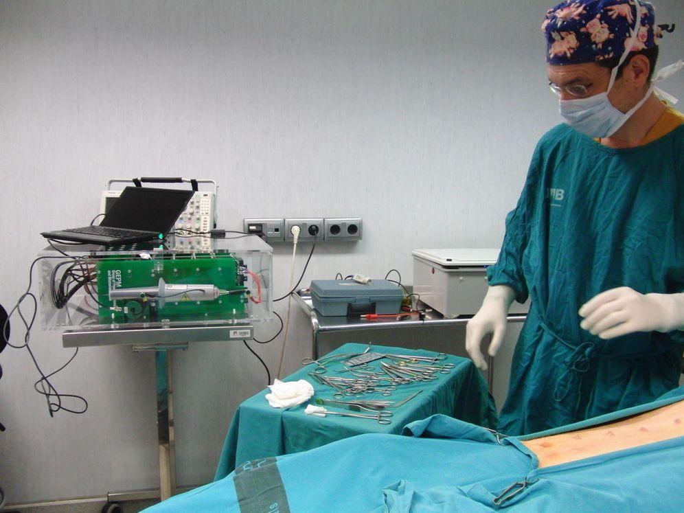 Foto: Dispositivo de electroporación irreversible (UPF)