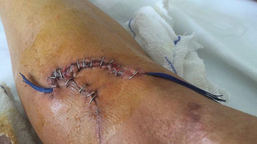 No se atrevieron a coserme la herida hasta que llegara al hospital un cirujano