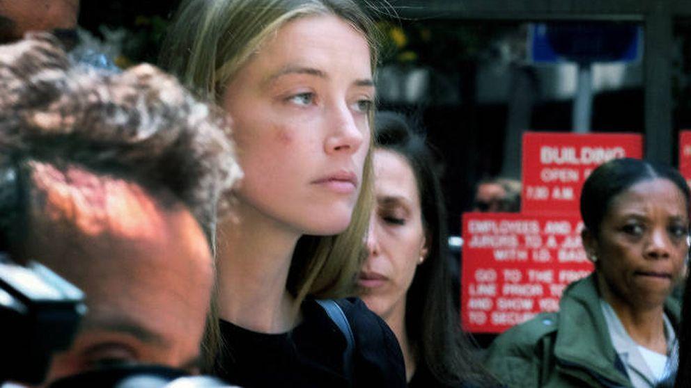 Amber Heard, herida tras denunciar a Johnny Depp por malos tratos