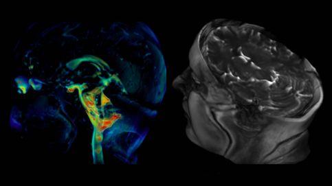 El latido del cerebro grabado por primera vez en 3D