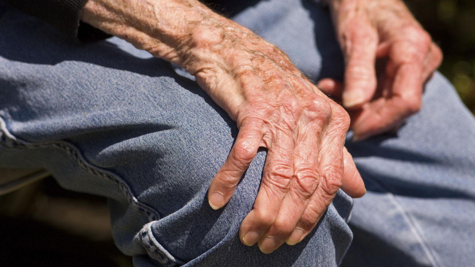 Foto: Casi dos de cada diez españoles mayores de 20 años sufren algún problema de artrosis reumatoide. (iStock)