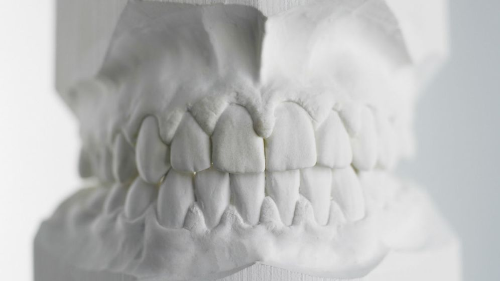 Foto: Molde de yeso dental. (Corbis)