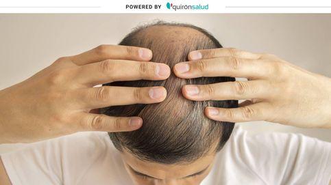 Un estudio analiza la relación entre la alopecia masculina y el coronavirus