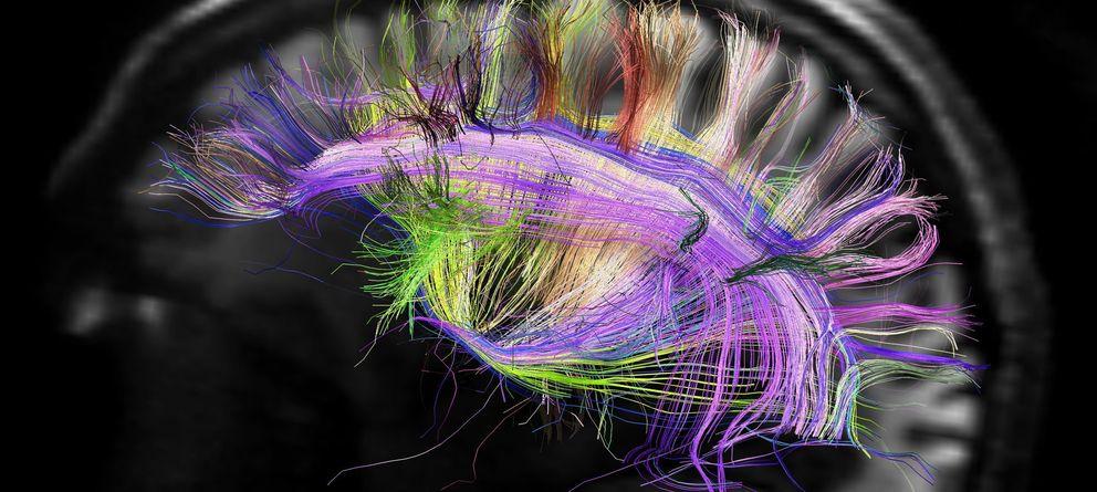 Foto: El cerebro humano es una cámara digital
