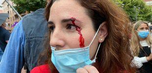 Post de Herida una diputada de Vox al recibir una pedrada en un mitin en Sestao (Vizcaya)