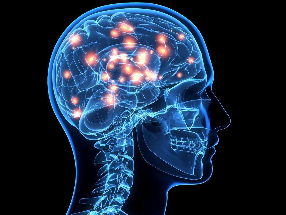 Por qué el cerebro humano es tan diferente al de los animales ...