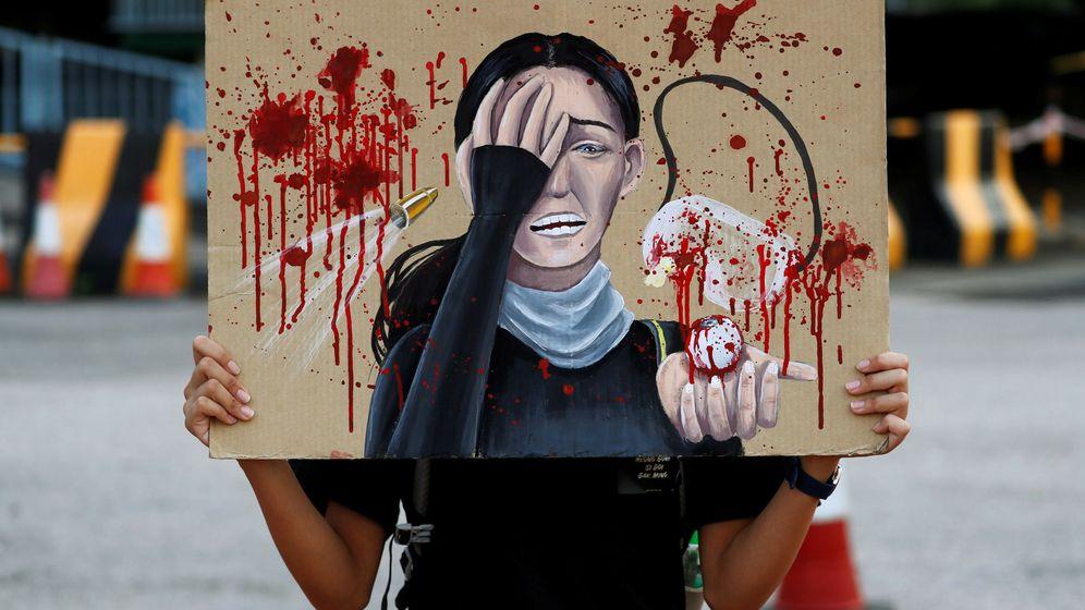 Foto: Una mujer sostiene una pintura en honor a la mujer que perdió un ojo en las protestas de Hong Kong. (REUTERS)