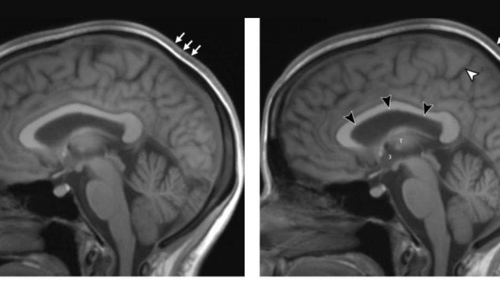 Foto: El cerebro de un astronauta, antes y después de una larga estancia en el espacio. Foto: Radiological Society of North America