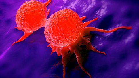 Crean un nuevo método, más rápido y fiable, para estudiar las células del cáncer