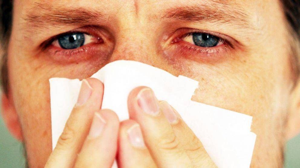 De los 'wearables' a los transgénicos: tecnología para luchar contra la alergia