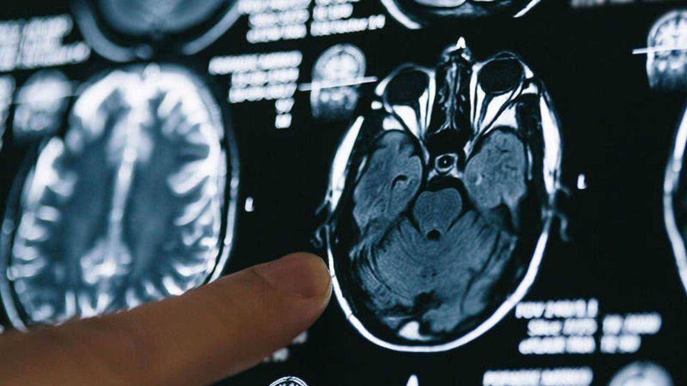 Una mutación 'blinda' el cerebro frente al alzhéimer y abre el camino a su tratamiento