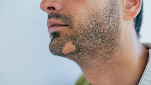 Calvas en la barba: ¿tienen solución? Dos expertos resuelven todas las dudas