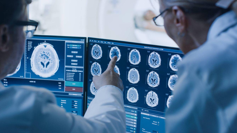 El estudio que podría cambiarlo todo sobre los tumores cerebrales