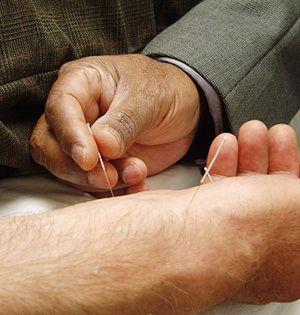 La acupuntura tiene un efecto 'superplacebo' en el dolor de espalda