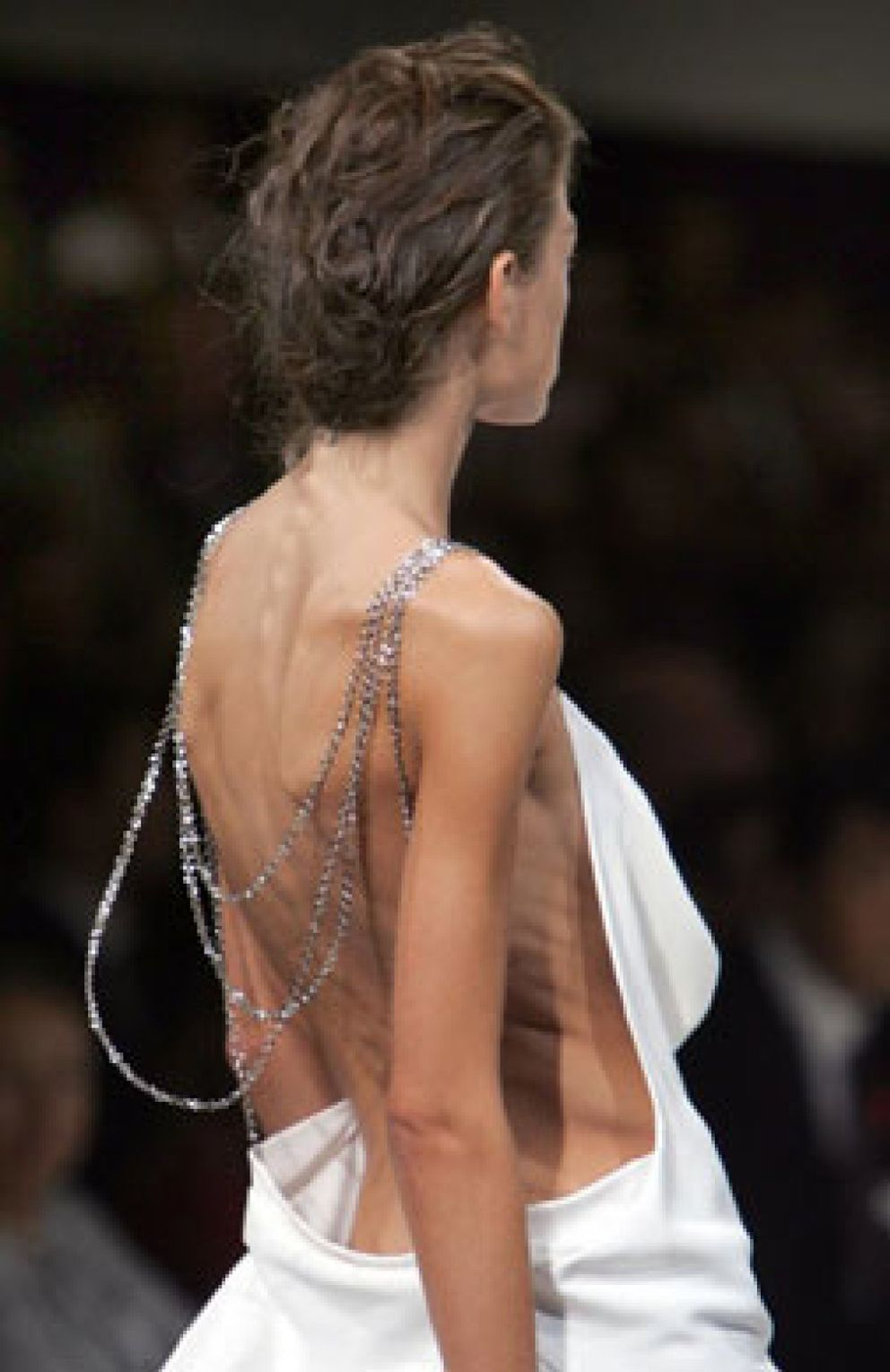 Foto: La anorexia y la bulimia son cosas de padres