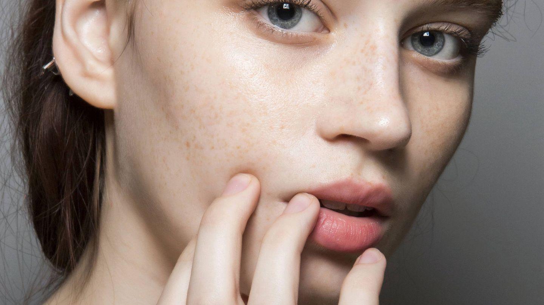 Cómo acabar con los puntos negros de la nariz: manual de un parche (Imaxtree)