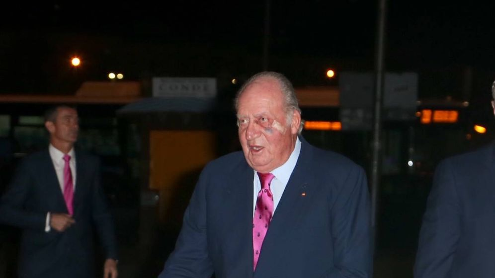 Foto: El rey Juan Carlos, con un fuerte golpe en el rostro. (Vanitatis)
