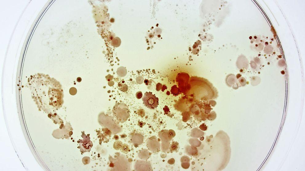 Cabras equilibristas y bacterias en la mano: las mejores fotos de ciencia de 2015