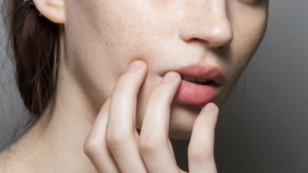 Prejuvenation: la medicina estética preventiva que funciona