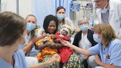 18 horas de operación y 30 médicos para separar a dos siamesas unidas por el cráneo
