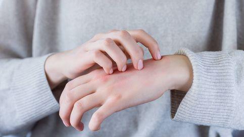 ¿Sufres un eczema? Esto es lo que le pasa realmente a tu piel