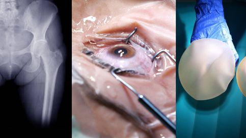 El colegio de médicos se defiende tras los 'Implant Files': cumplen las garantías