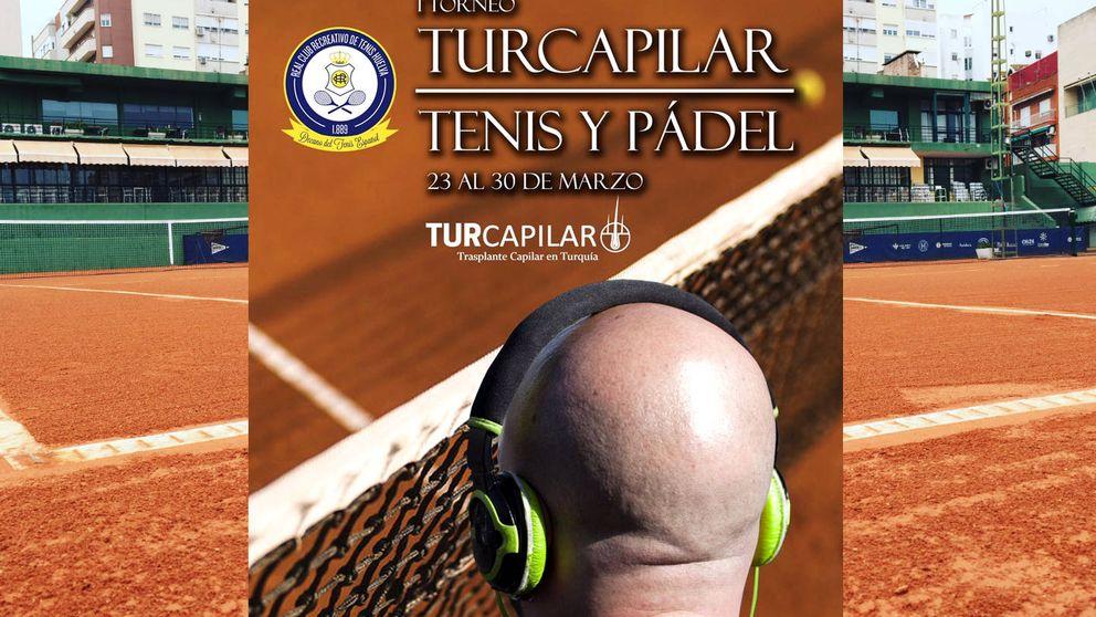 Un torneo de tenis regala como premio un trasplante capilar en Turquía