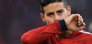 Post de La lesión de James producida por un fuerte estrés muscular (malo para el Real Madrid)