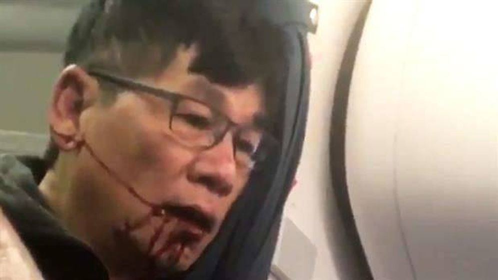 Foto: David Dao, con la boca llena de sangre, en el vuelo de United Airlines.