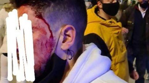 Los Mossos grabaron los disturbios de Vic y abren diligencias para detener a los violentos