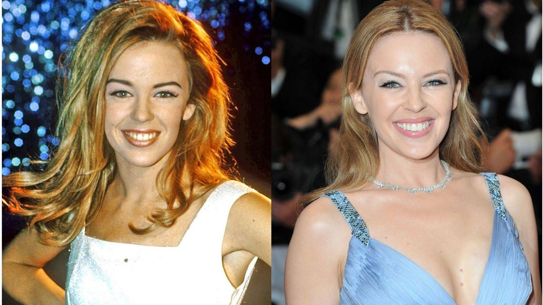 Kylie Minogue en 1990 vs. en 2012. (Cordon Press / Getty)