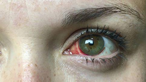 Un adolescente pierde parte de la retina por culpa de un puntero láser