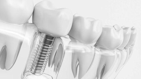 Estética insuperable: implantes de titanio y coronas de zirconio