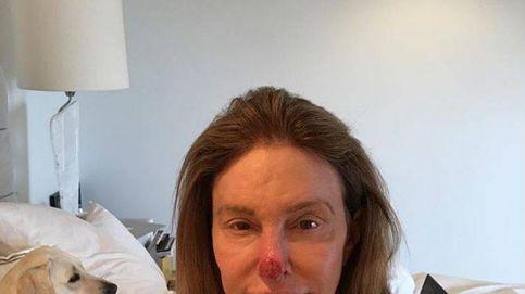 Caitlyn Jenner, operada de cáncer de piel, sube una escalofriante foto a las redes