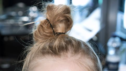 Sí, las microagujas pueden ayudarte a conseguir un pelo más fuerte