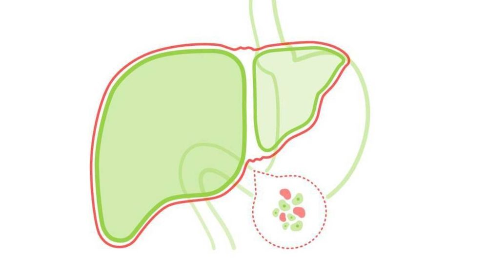 Foto: Hígado graso. (Ilustración: Alexandra Nikolaeva)
