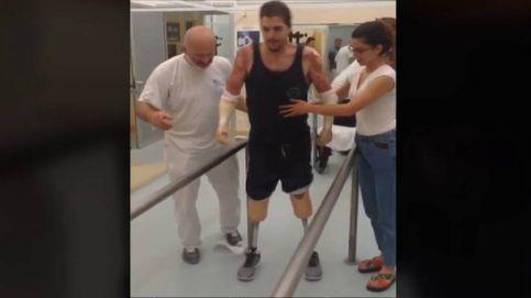 Emocionados primeros pasos de Morana con las prótesis financiadas por la solidaridad