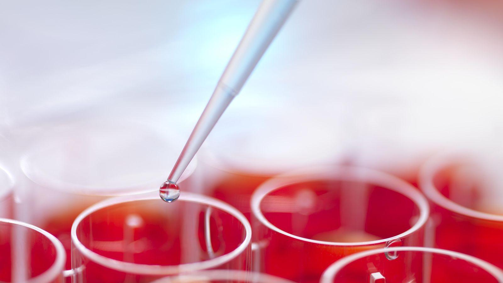 Ciencia por qu no se rompen las c lulas cuando se for Vajillas que no se rompen