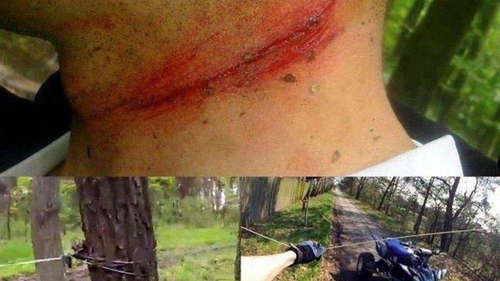 Nueva víctima en bicicleta de un 'cable trampa': crece la advertencia de este peligro