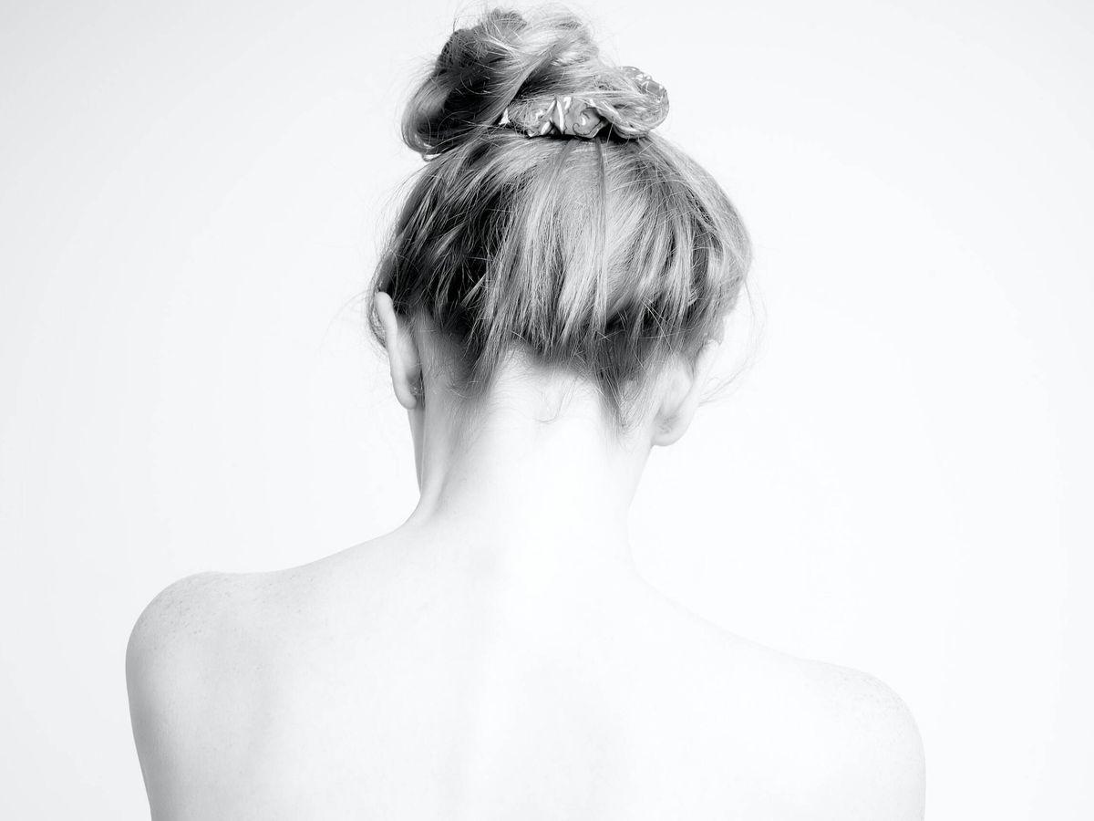 Foto: ¿Acné en la espalda? Hay un protocolo para controlarlo. (Unsplash)