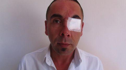 Este es el rostro de la tortura en la Turquía de Erdogan