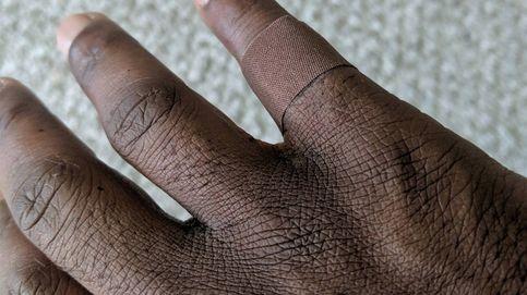 Un hombre negro se emociona al ponerse una tirita de su color por primera vez