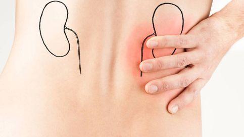 El nuevo tratamiento para expulsar los cálculos sin tanto dolor