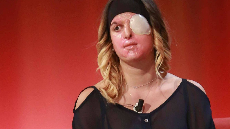 La Miss italiana que fue desfigurada con ácido por su ex da la cara en televisión