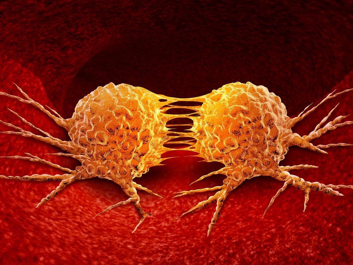 Foto: División de células cancerosas. (iStock)